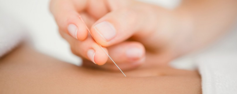 acupuncture common myths