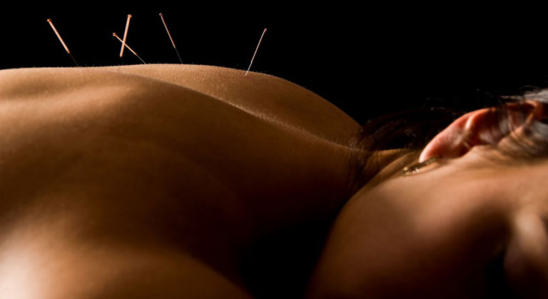 Woman Posterior Acupuncture
